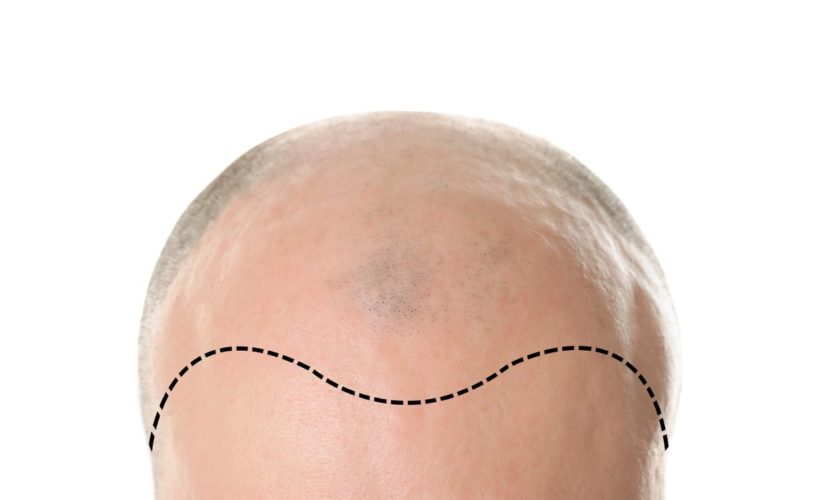 Benefits of FUE Hair Transplant Surgery