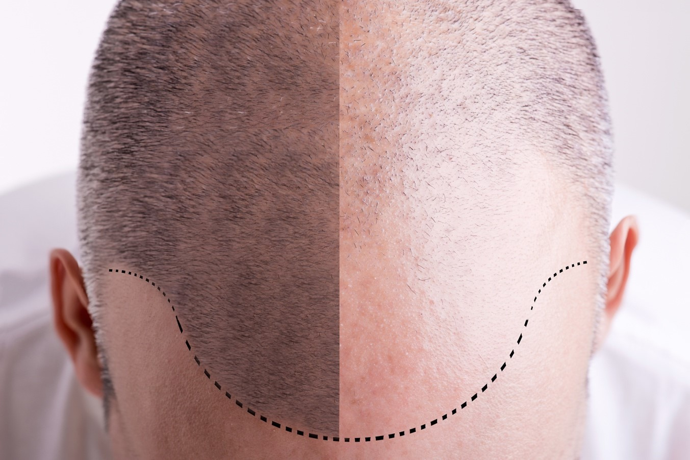 Importance of an Experienced Hair Transplant Surgeon