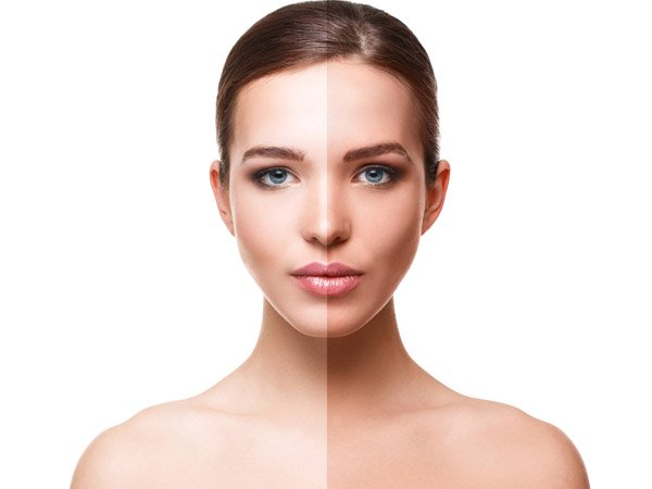 Everything You Need to Know About Laser Skin Resurfacing