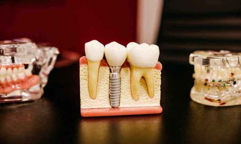 Dental Implant And Crown: All You Need To Know